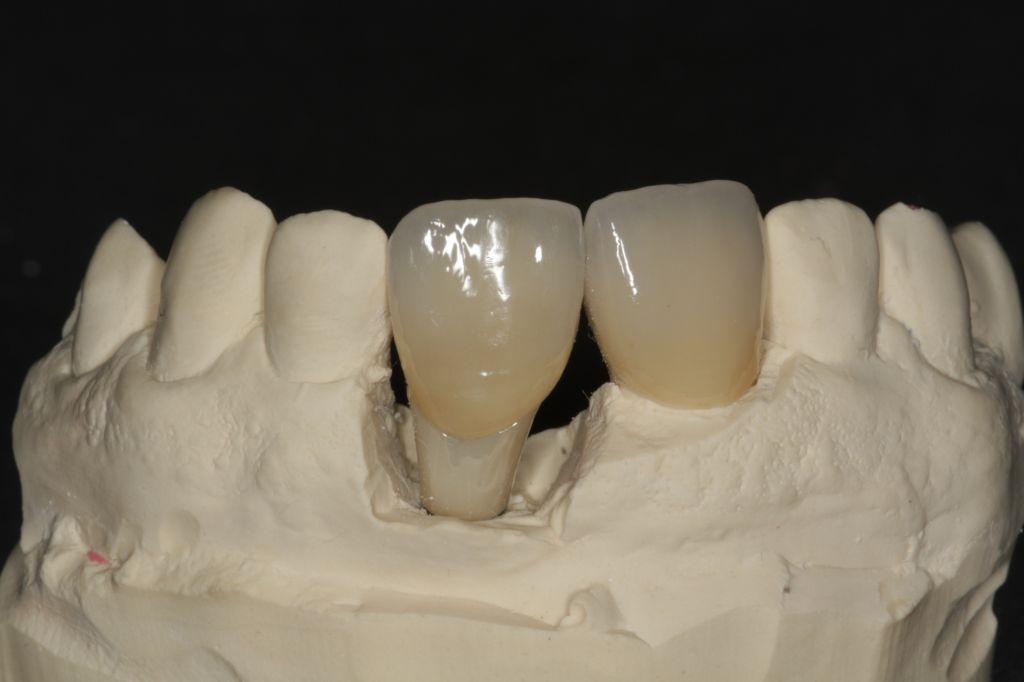 Frontzahnkrone auf Implantat